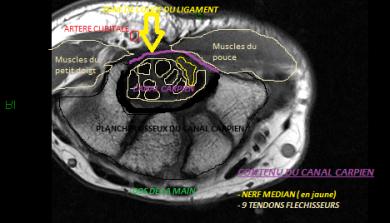 canal carpien, opération,75